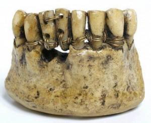Dentiera etrusca